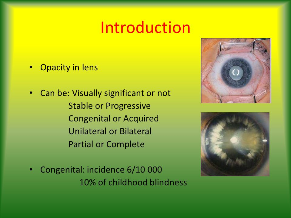 Introduction Opacity in lens Can be: Visually significant or not Stable or Progressive Congenital or Acquired Unilateral or Bilateral Partial or Complete Congenital: incidence 6/10 000 10% of childhood blindness