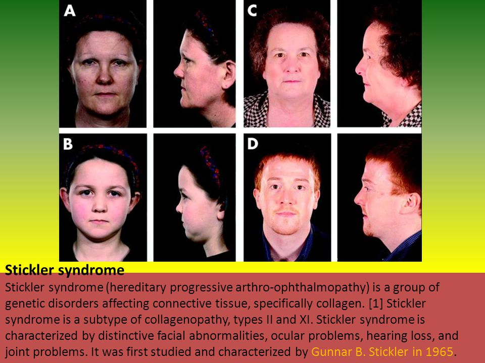 Stickler syndrome Stickler syndrome (hereditary progressive arthro-ophthalmopathy) is a group of genetic disorders affecting connective tissue, specifically collagen.