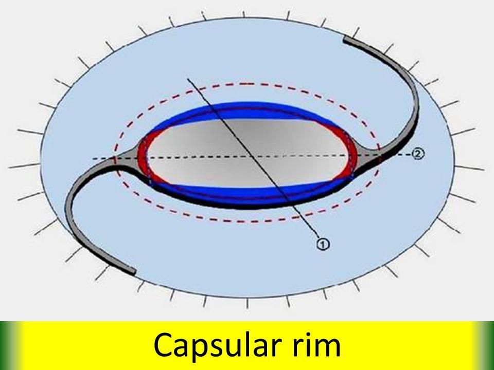 Capsular rim