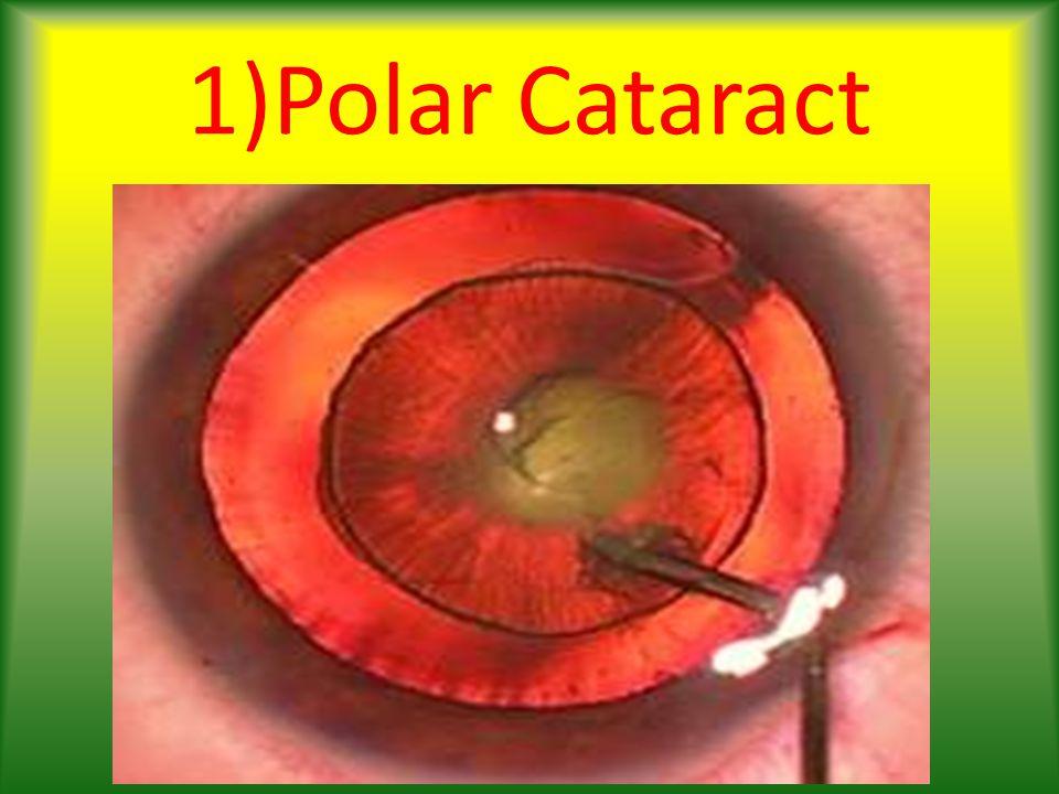 1)Polar Cataract
