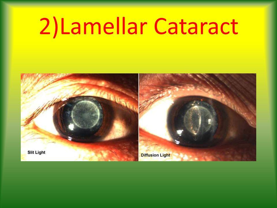 2)Lamellar Cataract
