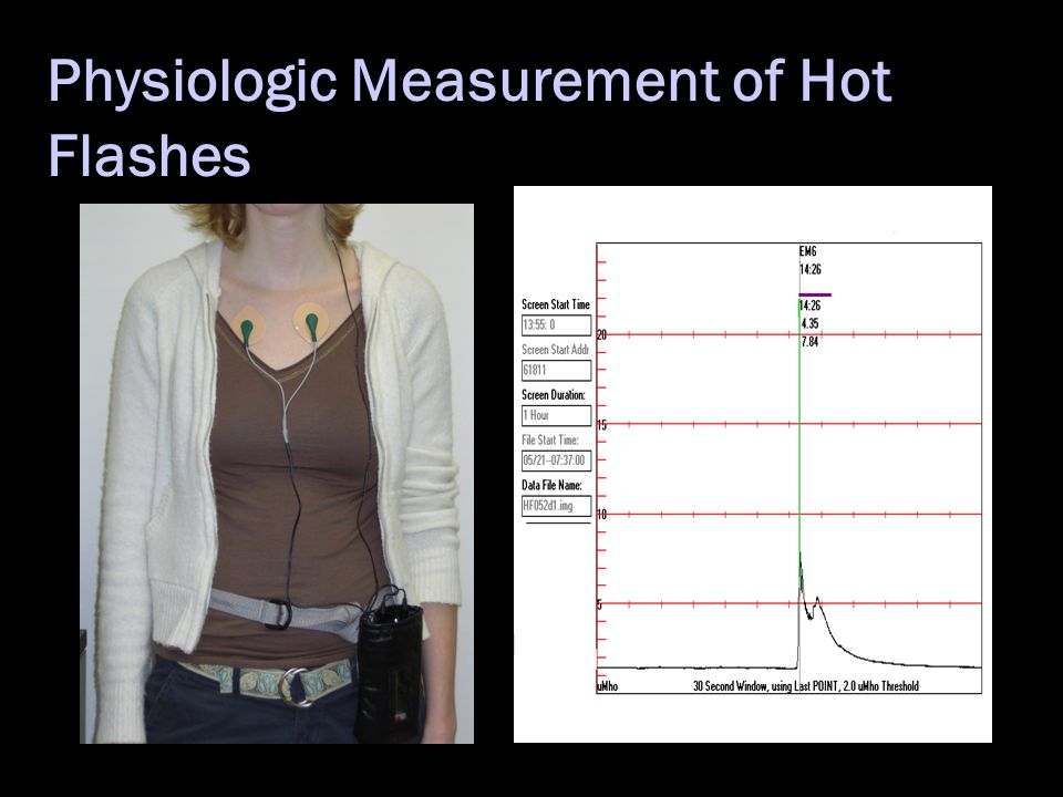 Physiologic Measurement of Hot Flashes