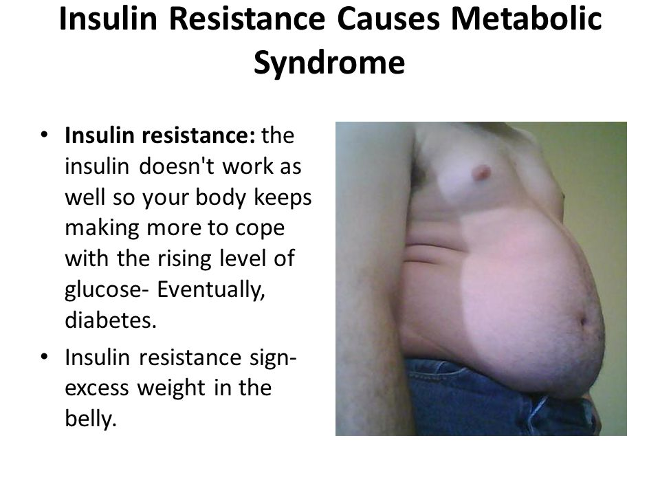 Obesity Causes Metabolic Syndrome Especially abdominal obesity.
