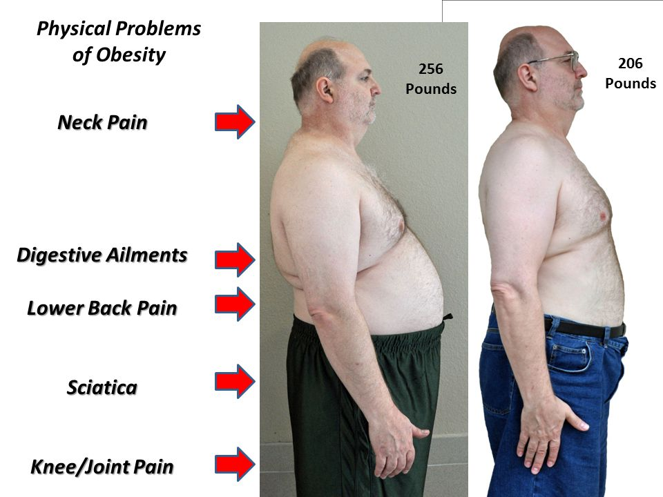 Neck Pain Digestive Ailments Lower Back Pain Sciatica Knee/Joint Pain Physical Problems of Obesity 256 Pounds 206 Pounds