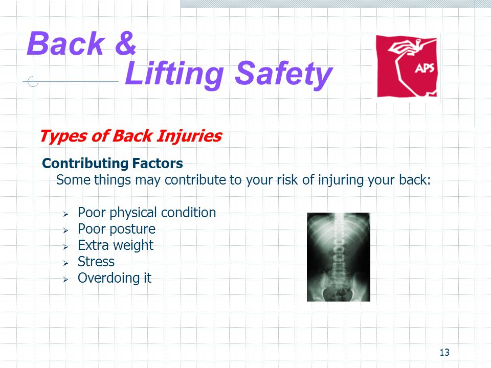 13 Back & Lifting Safety Types of Back Injuries Contributing Factors Some things may contribute to your risk of injuring your back:  Poor physical condition  Poor posture  Extra weight  Stress  Overdoing it