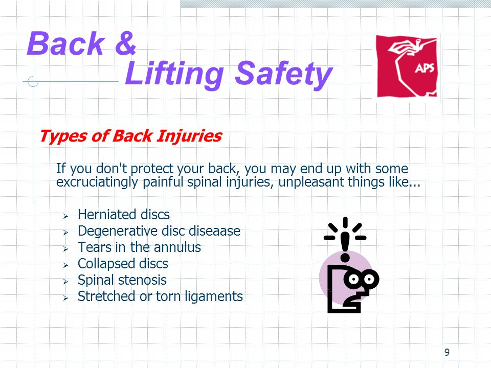 9 Back & Lifting Safety Types of Back Injuries If you don t protect your back, you may end up with some excruciatingly painful spinal injuries, unpleasant things like...
