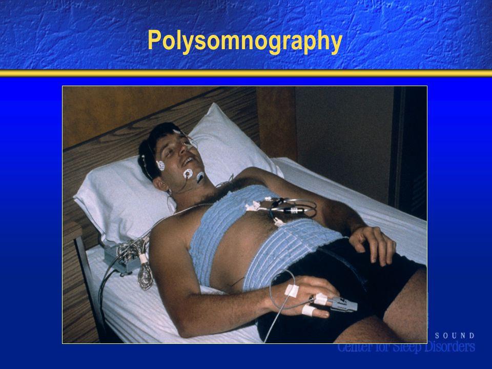 Polysomnography
