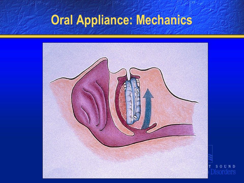 Oral Appliance: Mechanics