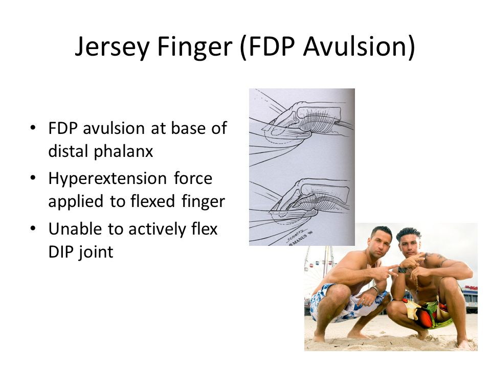 Jersey Finger (FDP Avulsion) FDP avulsion at base of distal phalanx Hyperextension force applied to flexed finger Unable to actively flex DIP joint