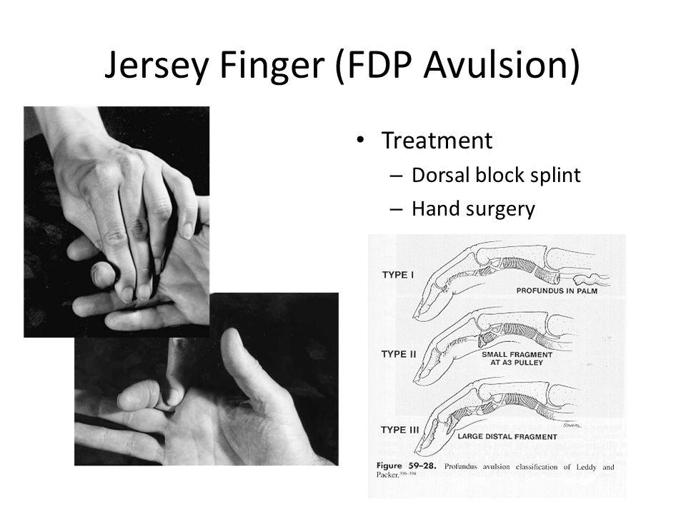 Jersey Finger (FDP Avulsion) Treatment – Dorsal block splint – Hand surgery