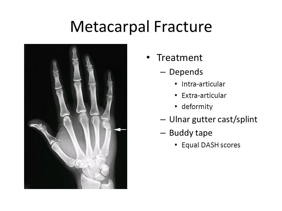 Metacarpal Fracture Treatment – Depends Intra-articular Extra-articular deformity – Ulnar gutter cast/splint – Buddy tape Equal DASH scores