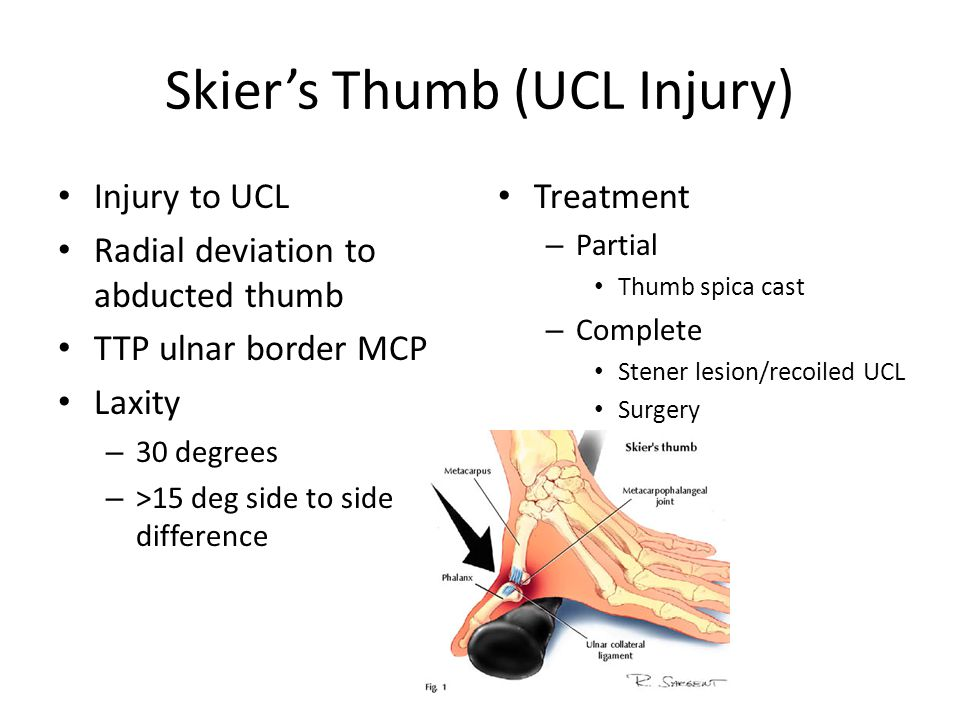 Skier's Thumb (UCL Injury) Injury to UCL Radial deviation to abducted thumb TTP ulnar border MCP Laxity – 30 degrees – >15 deg side to side difference Treatment – Partial Thumb spica cast – Complete Stener lesion/recoiled UCL Surgery