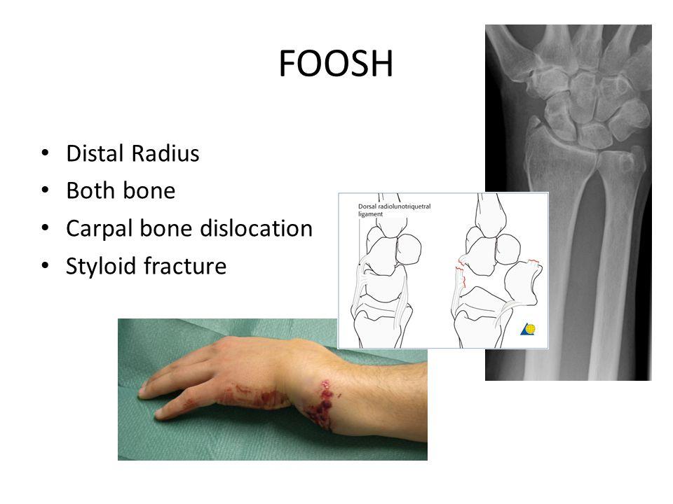 FOOSH Distal Radius Both bone Carpal bone dislocation Styloid fracture