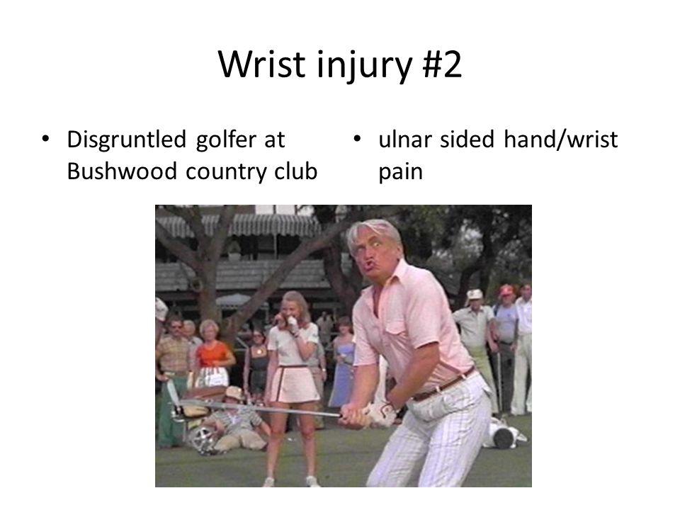Wrist injury #2 Disgruntled golfer at Bushwood country club ulnar sided hand/wrist pain