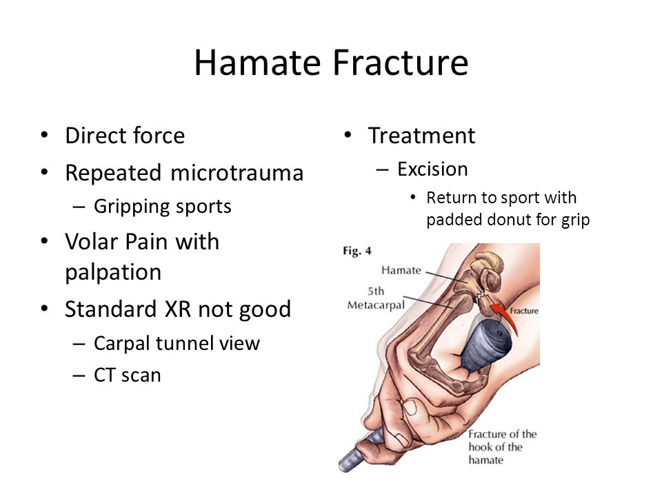 Hamate Fracture Direct force Repeated microtrauma – Gripping sports Volar Pain with palpation Standard XR not good – Carpal tunnel view – CT scan Treatment – Excision Return to sport with padded donut for grip