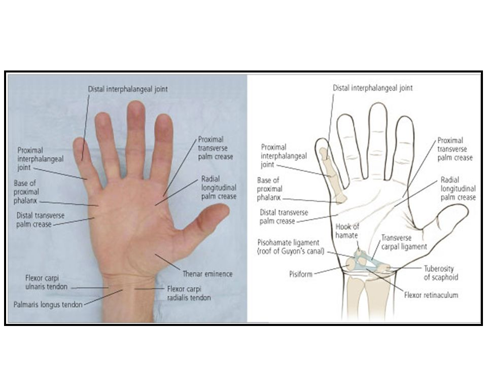 Carpal and Wrist Injuries