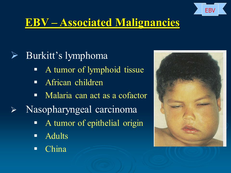   Burkitt's lymphoma   A tumor of lymphoid tissue   African children   Malaria can act as a cofactor   Nasopharyngeal carcinoma   A tumor of epithelial origin   Adults   China EBV – Associated Malignancies EBV