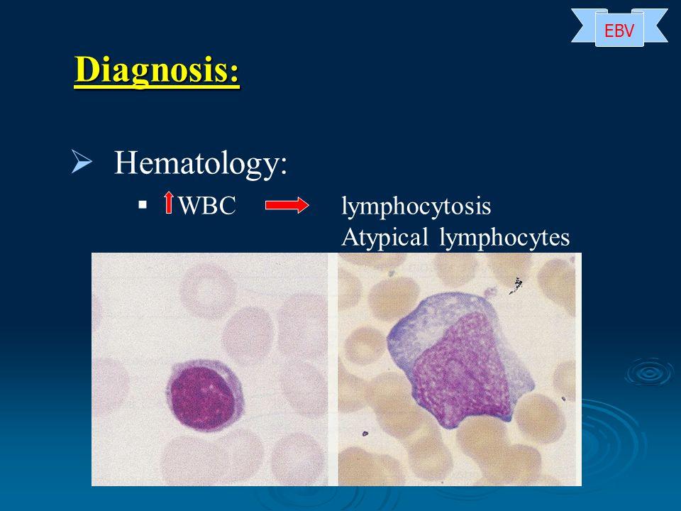   Hematology:   WBC lymphocytosis Atypical lymphocytes Diagnosis : EBV