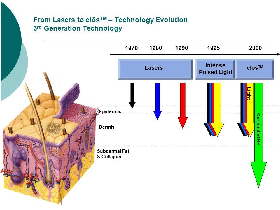 From Lasers to elōs TM – Technology Evolution 3 rd Generation Technology Epidermis Dermis Subdermal Fat & Collagen 19701980199019952000 Lasers Intense Pulsed Light elōs TM Conducted RF Light