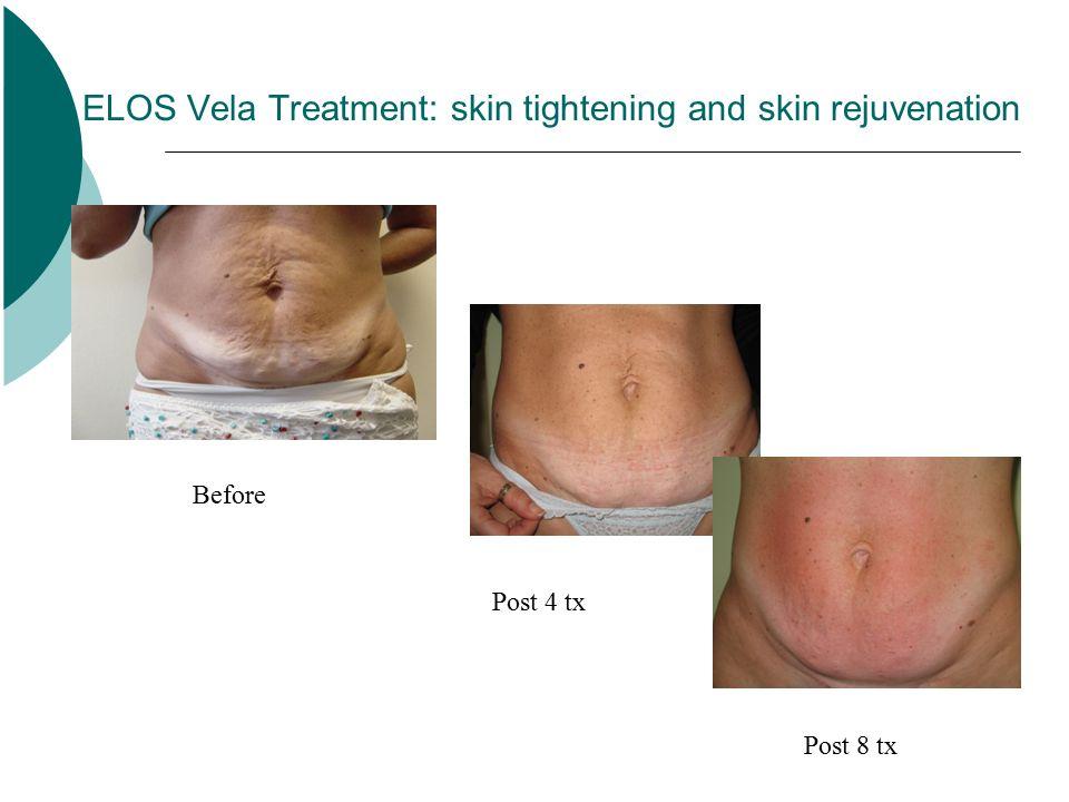 ELOS Vela Treatment: skin tightening and skin rejuvenation Before Post 4 tx Post 8 tx