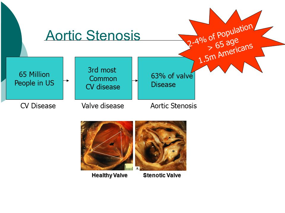 Aortic Stenosis Healthy Valve Valve diseaseCV Disease 65 Million People in US 3rd most Common CV disease 63% of valve Disease Aortic Stenosis 2-4% of Population > 65 age 1.5m Americans Stenotic Valve
