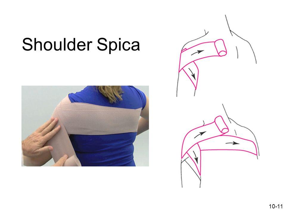 10-11 Shoulder Spica