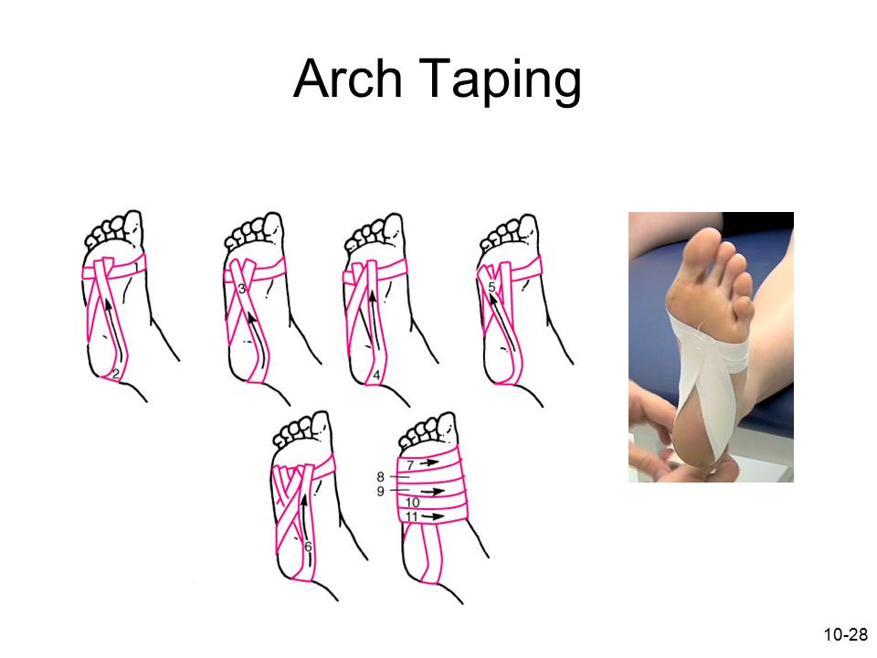10-28 Arch Taping