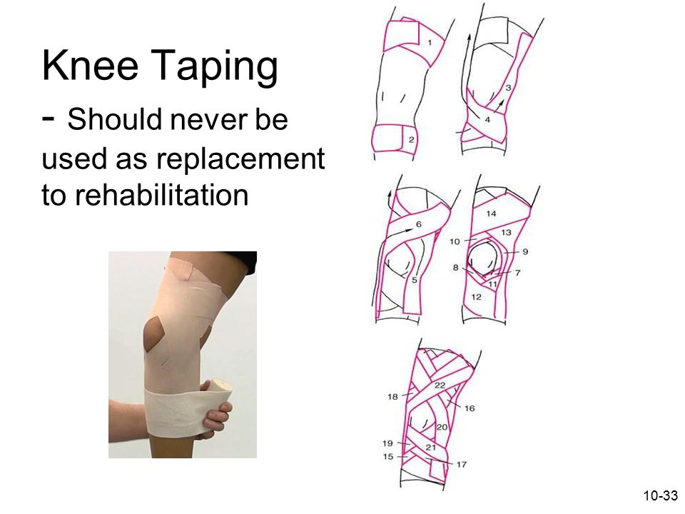 10-33 Knee Taping - Should never be used as replacement to rehabilitation