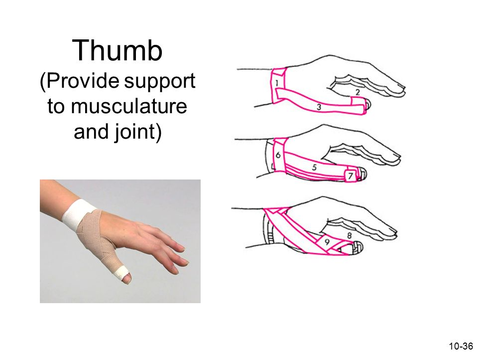 10-36 Thumb (Provide support to musculature and joint)