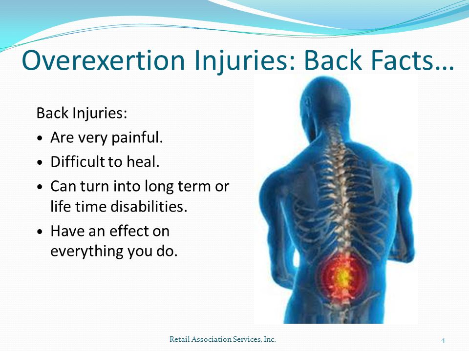 Overexertion Injuries: Back Facts… Back Injuries: Are very painful.