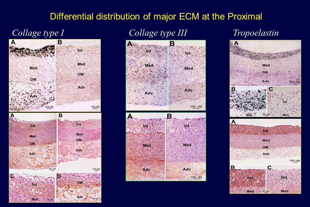 Tropoelastin gene expression Dist: Biphasic Prox: Increase Xu, Zarins, Glagov.