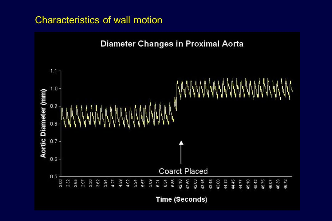 Aortic wall structure