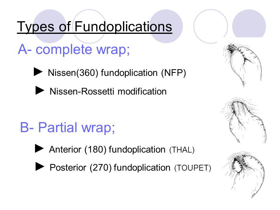 Types of Fundoplications A- complete wrap; ► Nissen(360) fundoplication (NFP) ► Nissen-Rossetti modification B- Partial wrap; ► Anterior (180) fundopl