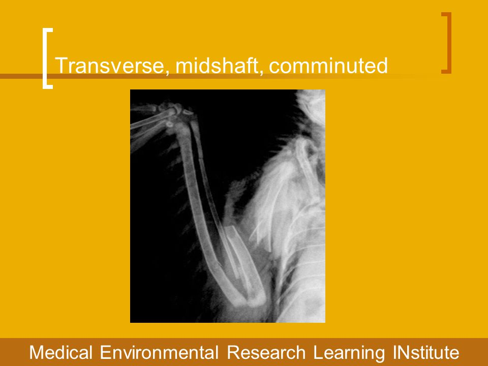 Transverse, midshaft, comminuted Medical Environmental Research Learning INstitute
