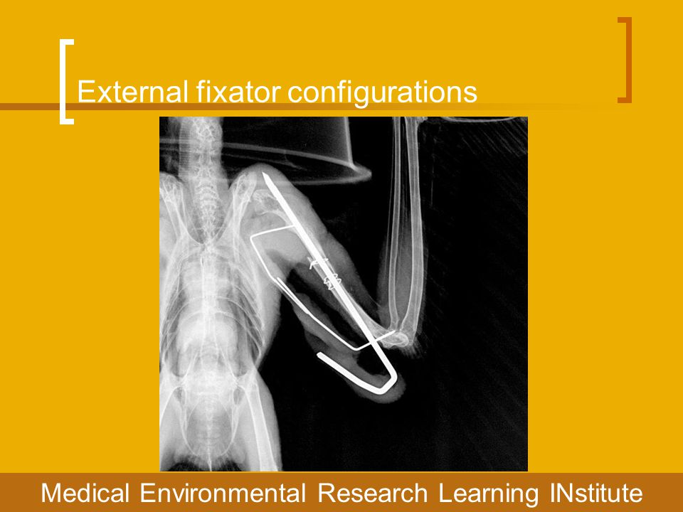 External fixator configurations Medical Environmental Research Learning INstitute