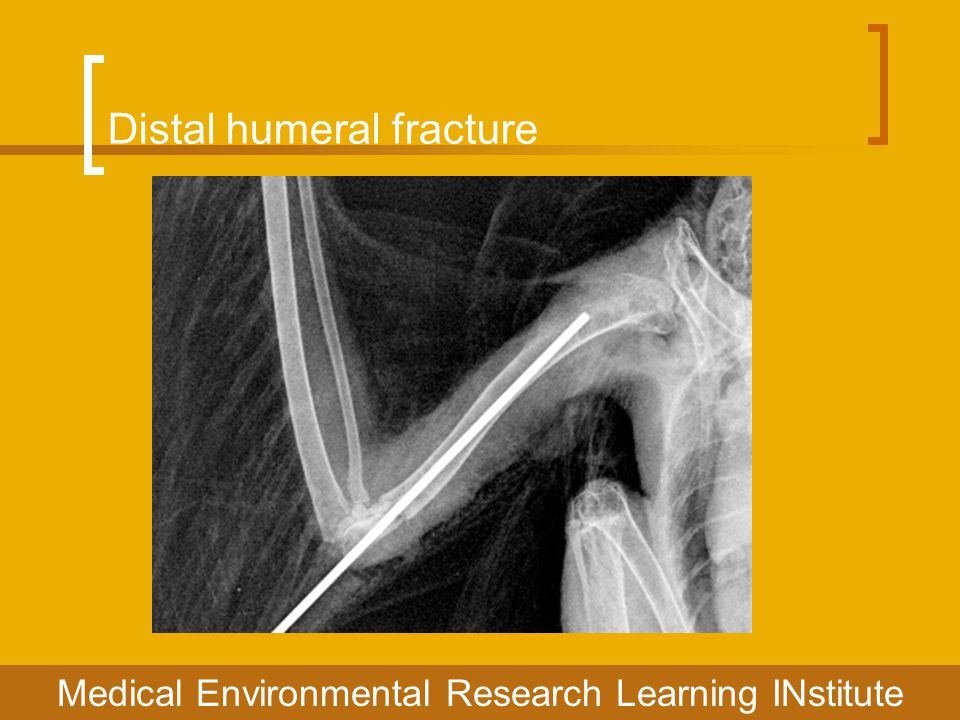 Distal humeral fracture Medical Environmental Research Learning INstitute