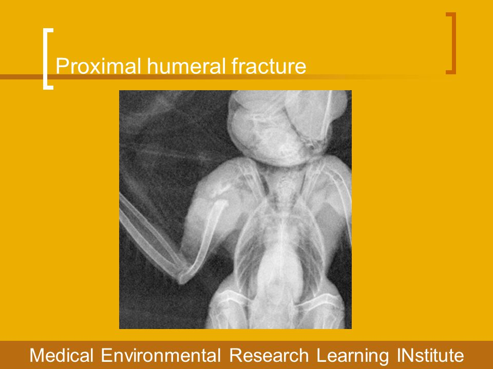 Proximal humeral fracture Medical Environmental Research Learning INstitute