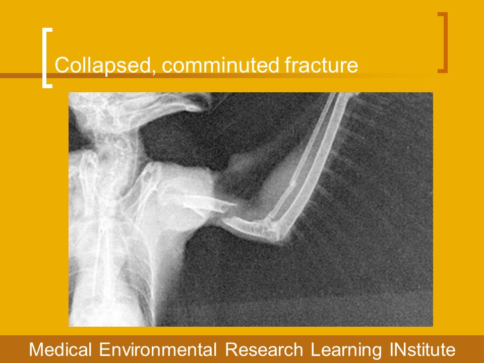 Collapsed, comminuted fracture Medical Environmental Research Learning INstitute