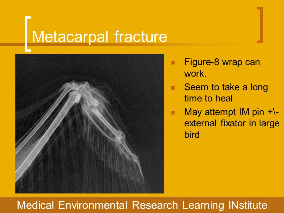 Metacarpal fracture Figure-8 wrap can work. Seem to take a long time to heal May attempt IM pin +\- external fixator in large bird Medical Environment
