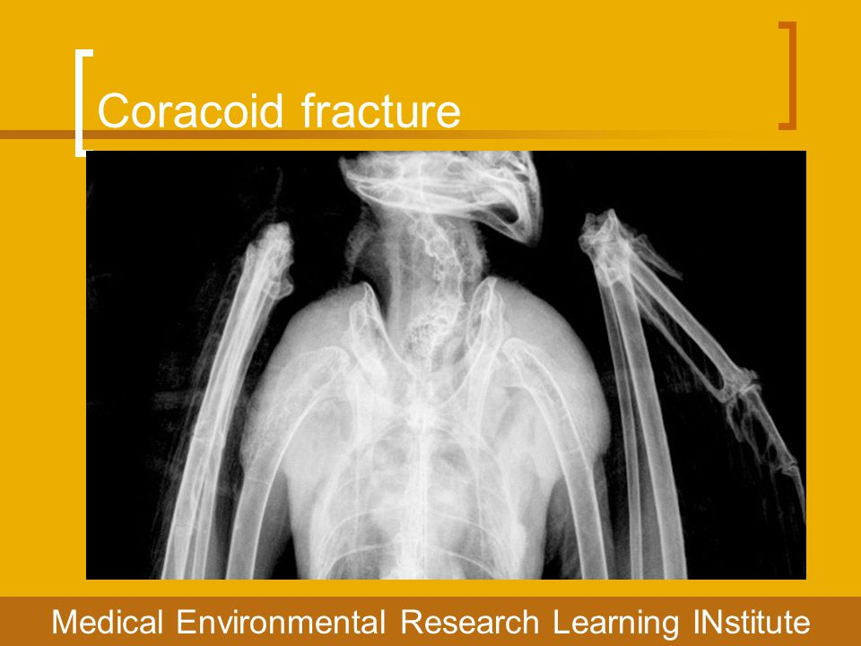 Coracoid fracture Medical Environmental Research Learning INstitute