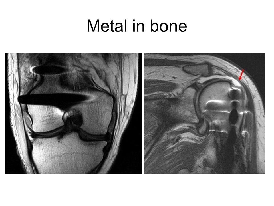 Metal in bone
