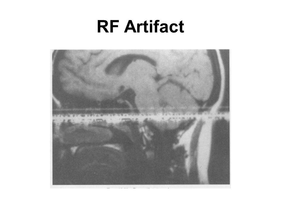 RF Artifact
