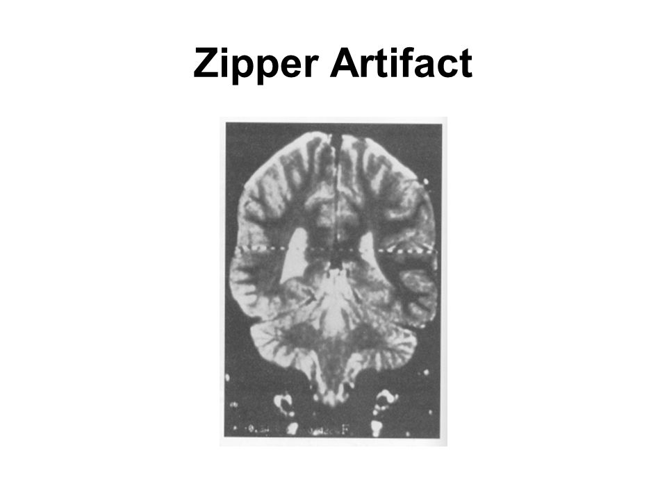 Zipper Artifact