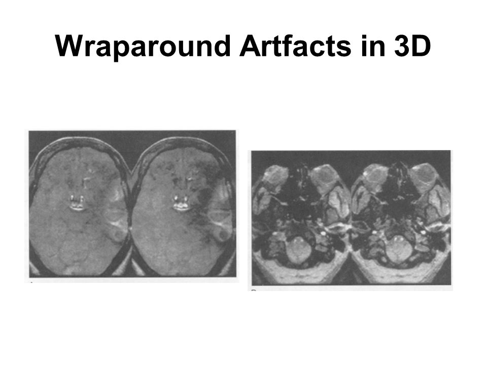 Wraparound Artfacts in 3D