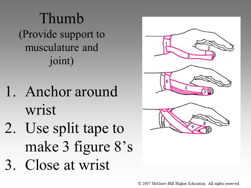 © 2007 McGraw-Hill Higher Education. All rights reserved. Thumb (Provide support to musculature and joint) 1.Anchor around wrist 2.Use split tape to m