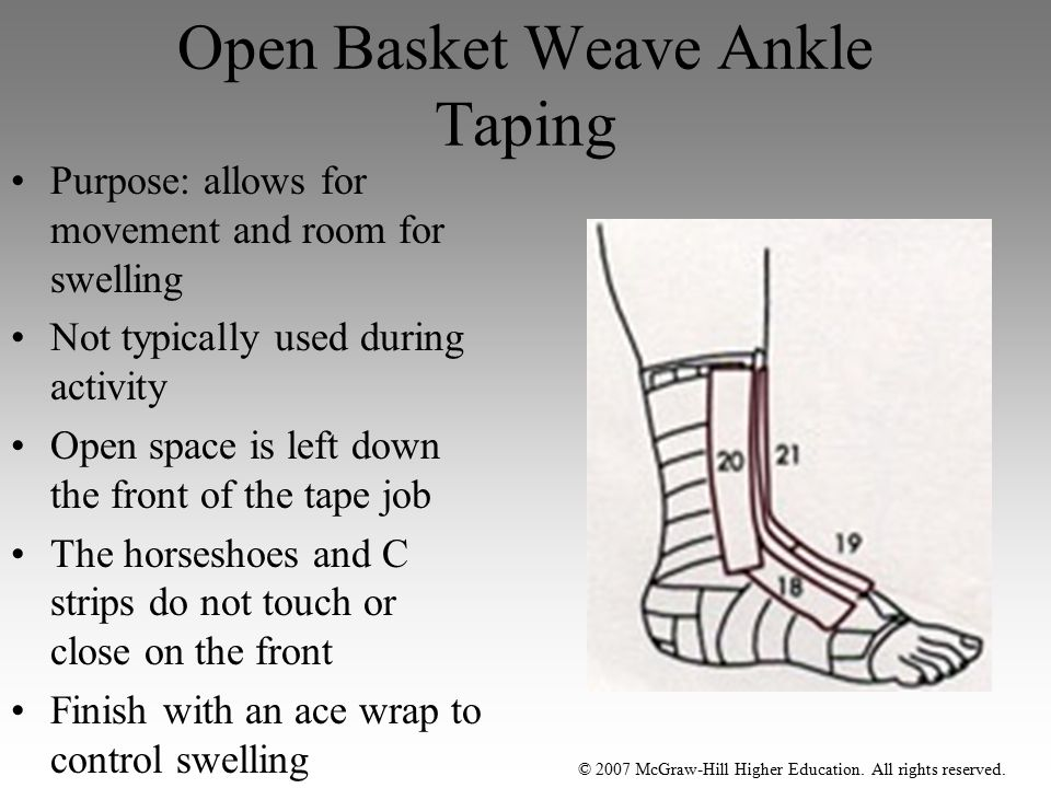 © 2007 McGraw-Hill Higher Education. All rights reserved. Open Basket Weave Ankle Taping Purpose: allows for movement and room for swelling Not typica