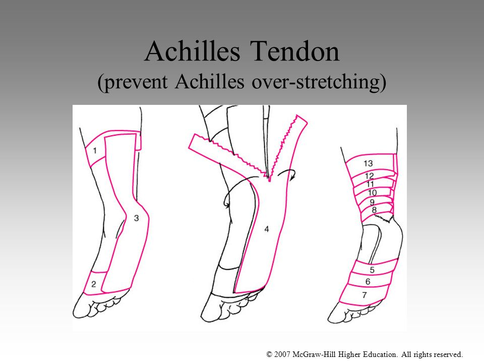 © 2007 McGraw-Hill Higher Education. All rights reserved. Achilles Tendon (prevent Achilles over-stretching)