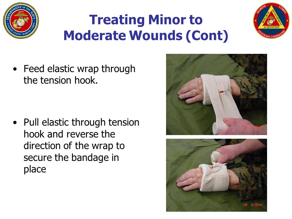 Treating Minor to Moderate Wounds (Cont) Feed elastic wrap through the tension hook.