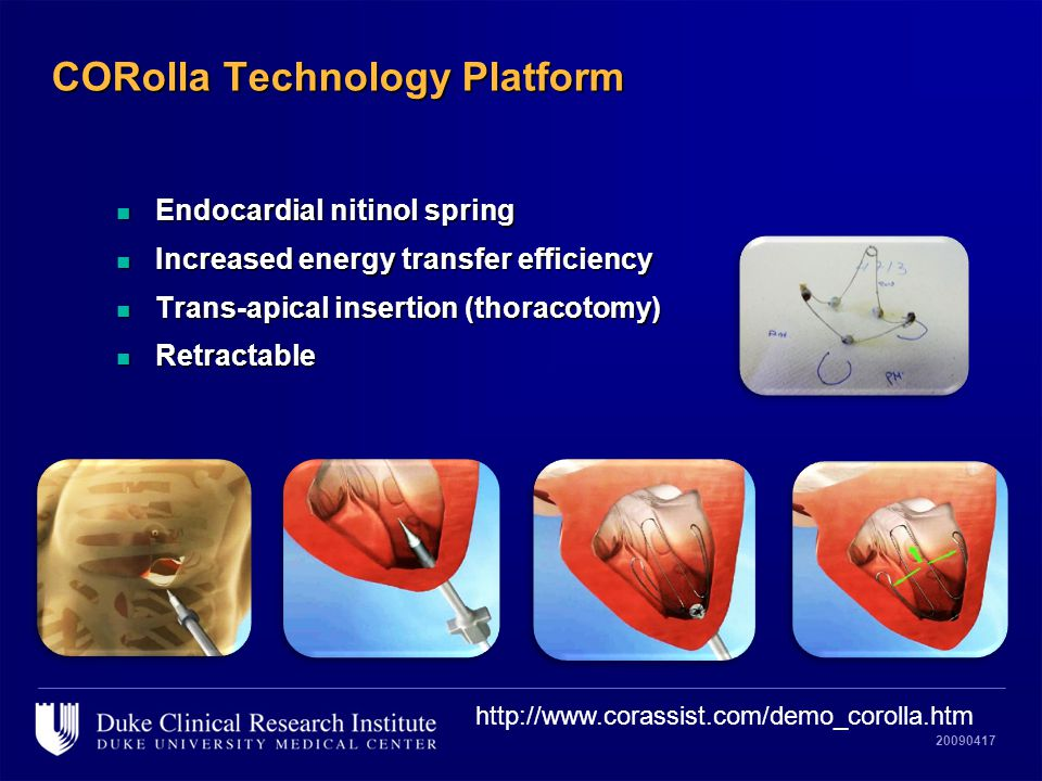 20090417 CORolla Technology Platform n Endocardial nitinol spring n Increased energy transfer efficiency n Trans-apical insertion (thoracotomy) n Retractable http://www.corassist.com/demo_corolla.htm