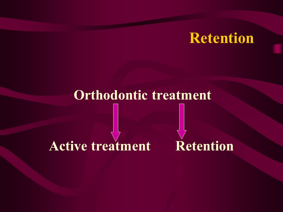 Retention Orthodontic treatment Active treatment Retention